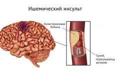 Обширний інсульт: види, причини виникнення і тактика лікування з наступною реабілітацією