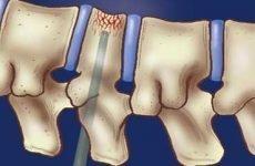 Оперативні методи лікування гемангіоми хребта