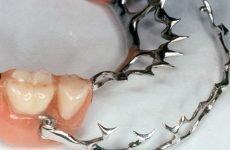 Особливості та застосування в стоматології шинируючих протезів