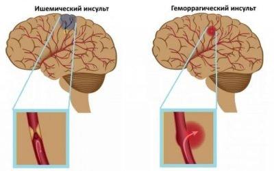 Відмінності симптомів і патогенезу ішемічного та геморагічного інсульту