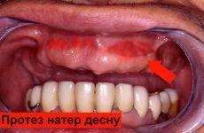 Чому зубний протез може натирати ясна і як вирішити цю проблему?