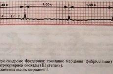 Поняття, симптоми і лікування синдрому Фредеріка