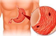 Причини розвитку стресової виразки шлунка і методика її лікування