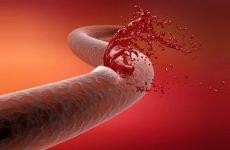 Розвиток тромбозу підколінної вени: причини і симптоми, діагностика і лікування