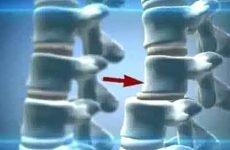 Ретролистез l1, l2, l3, l4, l5: причини виникнення та методи лікування