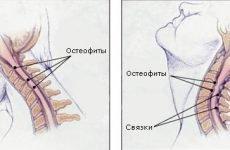 Шийний спондильоз: причини, симптоми і способи лікування