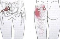 Симптоматика і терапія ішіасу: код за МКХ 10