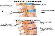 Спондильоз грудного відділу хребта: харчування та лікування хвороби