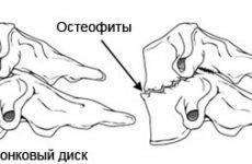 Спондильоз поперекового відділу хребта: симтоми, види лікування