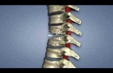 Спондиліт поперекового відділу хребта: діагностика та лікування