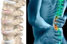 Спондилоартроз грудного відділу хребта: всі нюанси хвороби