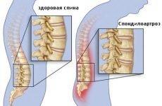 Спондилоартроз хребта: важливі аспекти лікувальної тактики
