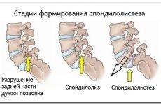 Спонділоліз l5: симптоми і найефективніші методи лікування