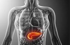 Стеатоз підшлункової залози: причини, наслідки, лікування