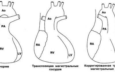 Транспозиція серцевих магістральних судин: причини патології, симптоми і лікування з прогнозами