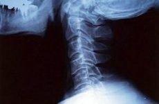Видалення міжхребцевої грижі шийного відділу хребта