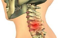 Варіанти лікування хондроза шийного відділу хребта