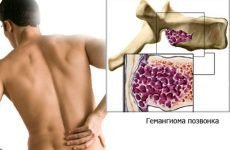 Все, що Вам необхідно знати про гемангіоми хребта