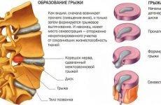 Всі методи лікування міжхребцевої грижі. Як вилікувати