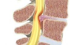 Защемлення нерва в хребті: поперековий, шийний, грудний