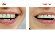 Що собою являє естетична реставрація зубів і коли її призначають?