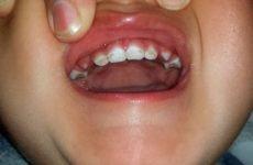 Що таке гіпоплазія емалі зубів у дітей і як її лікувати?