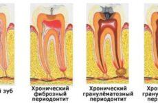 Що таке гранулирующий періодонтит?