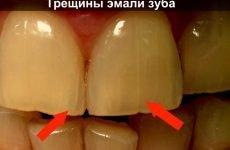 Як швидко і просто відновити зубну емаль в домашніх умовах?