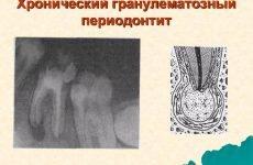 Як і коли виникає гранулематозний періодонтит і як його лікувати?