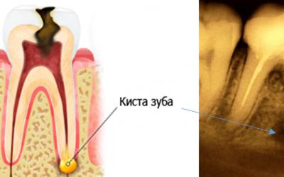 Як лікувати кісту зуба без операції?