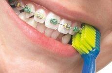 Як правильно чистити зуби з брекетами, щоб не псувалися ні зуби, ні системи?