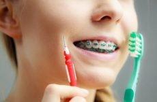 Яка зубна щітка підійде для чищення брекетів?