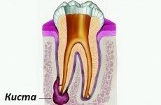 Коли призначають антибіотики при кісті зуба?