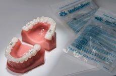Коли застосовують елайнери для вирівнювання зубів?