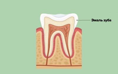Чи можна і як зміцнити зубну емаль в домашніх умовах?