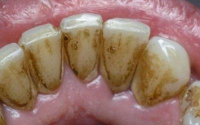 Відчувається біль, коли знімають зубний камінь?