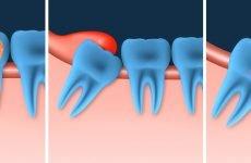 Чому може бути боляче видаляти зуб мудрості?
