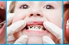 Чому може виникнути запах гнилі з рота у дитини?