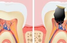 Чому після лікування пульпіту може захворіти зуб?
