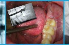 Чому зуб мудрості росте в щоку і що з цим робити?