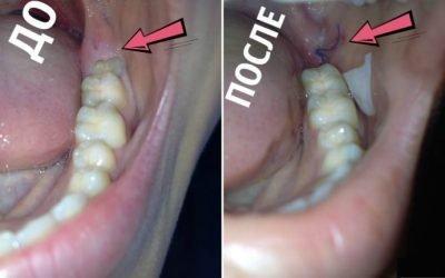 Причини запалення і набряк ясен, після видалення зуба мудрості