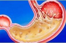 Симптоми й лікування гастриту шлунка з підвищеною кислотністю
