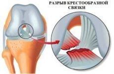 Дегенеративні зміни передньої хрестоподібної зв'язки колінного суглоба і часткові пошкодження хрестів коліна