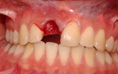 Як зупинити кров після видалення зуба, що робити при кровотечі якщо вирваний зуб мудрості