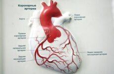 Коронарні артерії серця, судин схема