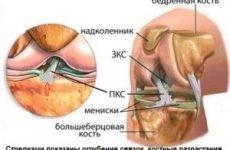 Лигаментоз хрестоподібних зв'язок колінного суглоба — лікування та причини, наслідки і ускладнення захворювання