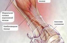 Міозит литкових м'язів — симптоми і лікування, запалення медіальної головки і сухожилля м'язів гомілки і що робити при болях