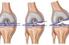 Розрив хрестоподібної зв'язки колінного суглоба — симптоми і лікування, наслідки та ускладнення пошкодження