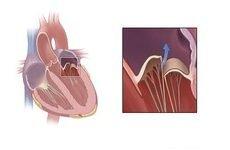Недостатність мітрального клапана: причини, симптоми і лікування
