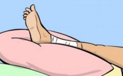 Розтягнення литкового м'яза — симптоми і лікування вдома мазями, що робити якщо потягнув м'яз на нозі і як лікувати